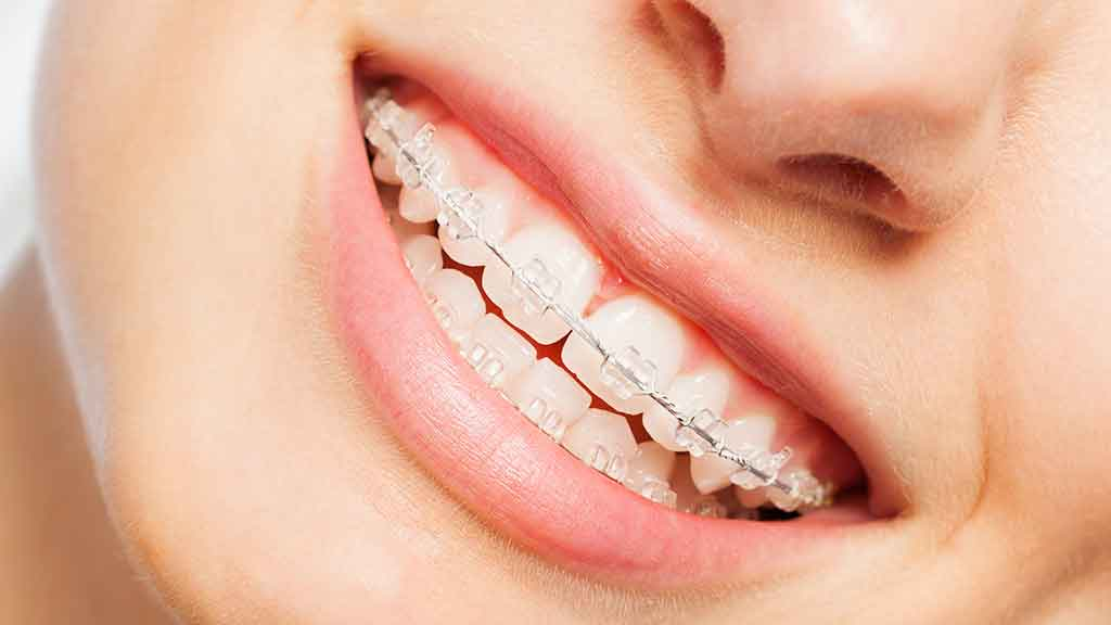Health insurance for braces - CHOICE