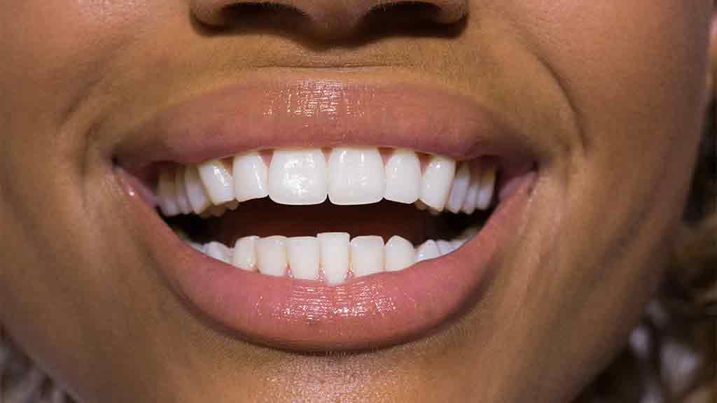 Teeth whitening treatments - dentists, dental care and