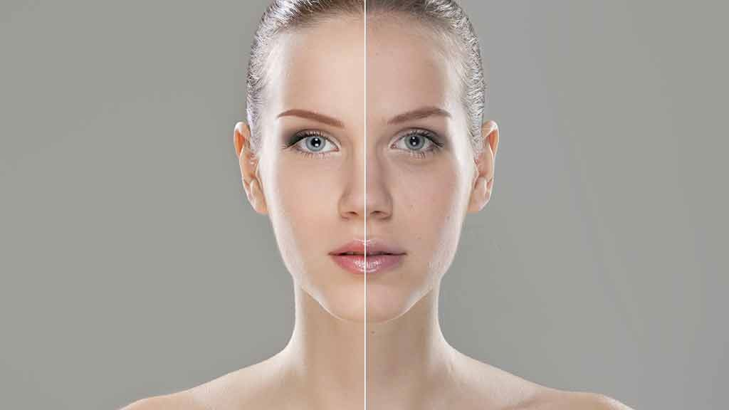Anti-wrinkle injections, botox and fillers - anti-ageing
